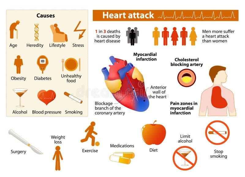 Cardíaco de ataque infographic ilustração do vetor