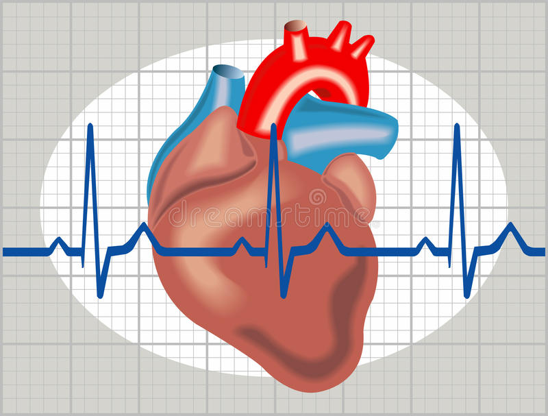 Cardiac arrhythmia royalty free illustration