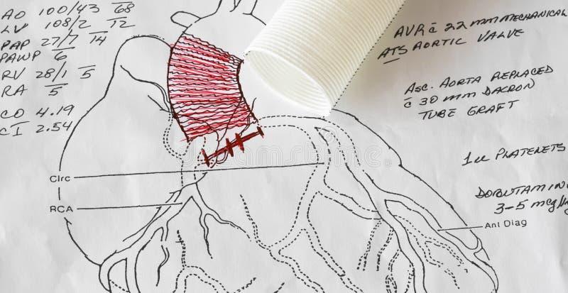 A Cardiac Surgeon's Heart Surgery Diagram stock image