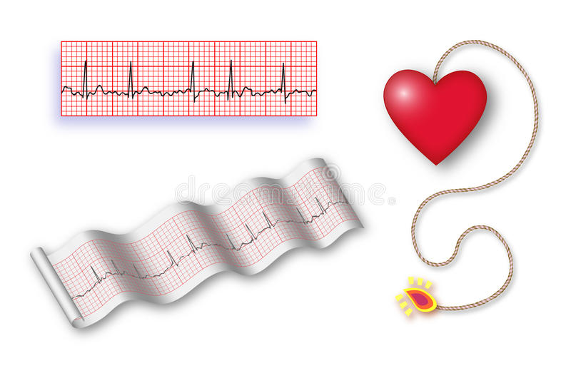 Cardiac time bomb with det cord + 2 EKG strips. Full page of colorful illustrations- one of the heart as a bomb with fuse already lit, signaling the impending stock illustration