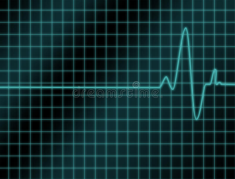 Download Cardio Readout Stock Photo - Image: 10467000