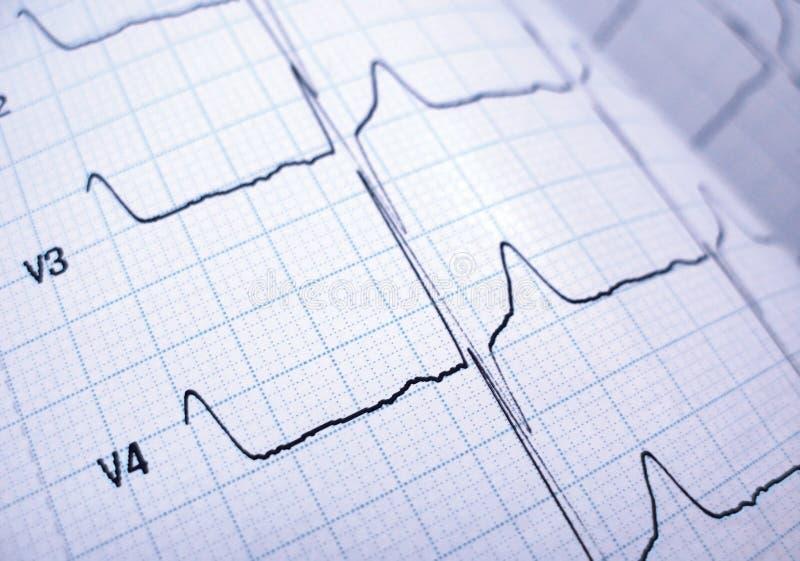 Cardiografo fotografie stock libere da diritti