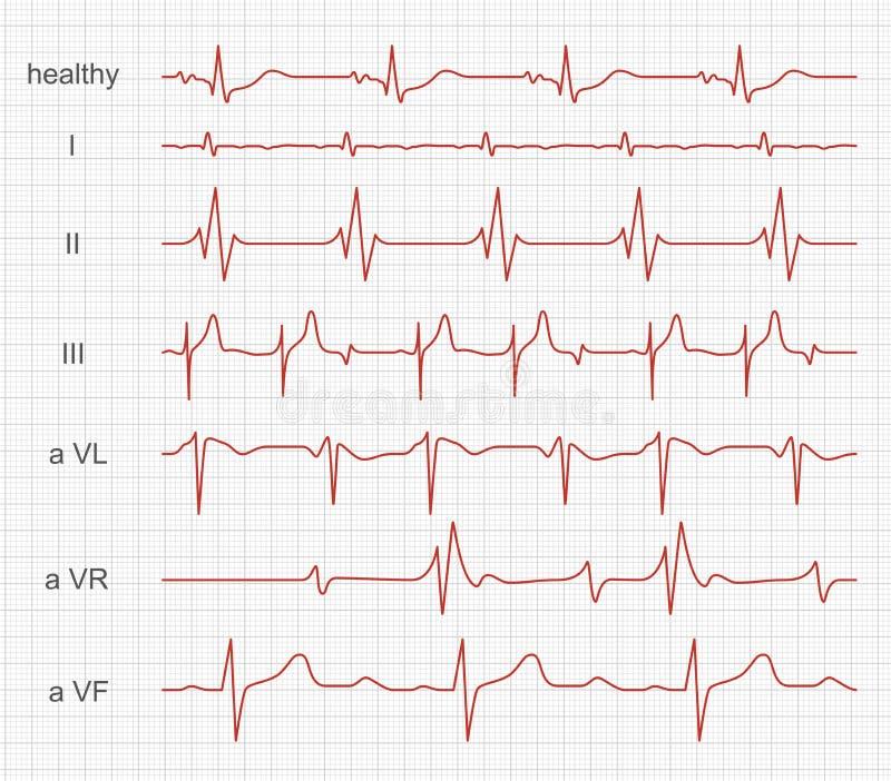 Cardiogram, ритм сердца красный на экране монитора иллюстрация штока