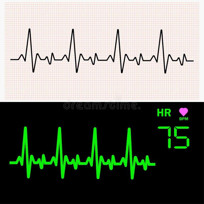 Cardiogram сердца развевает на миллиметровке и на мониторе также вектор иллюстрации притяжки corel иллюстрация вектора