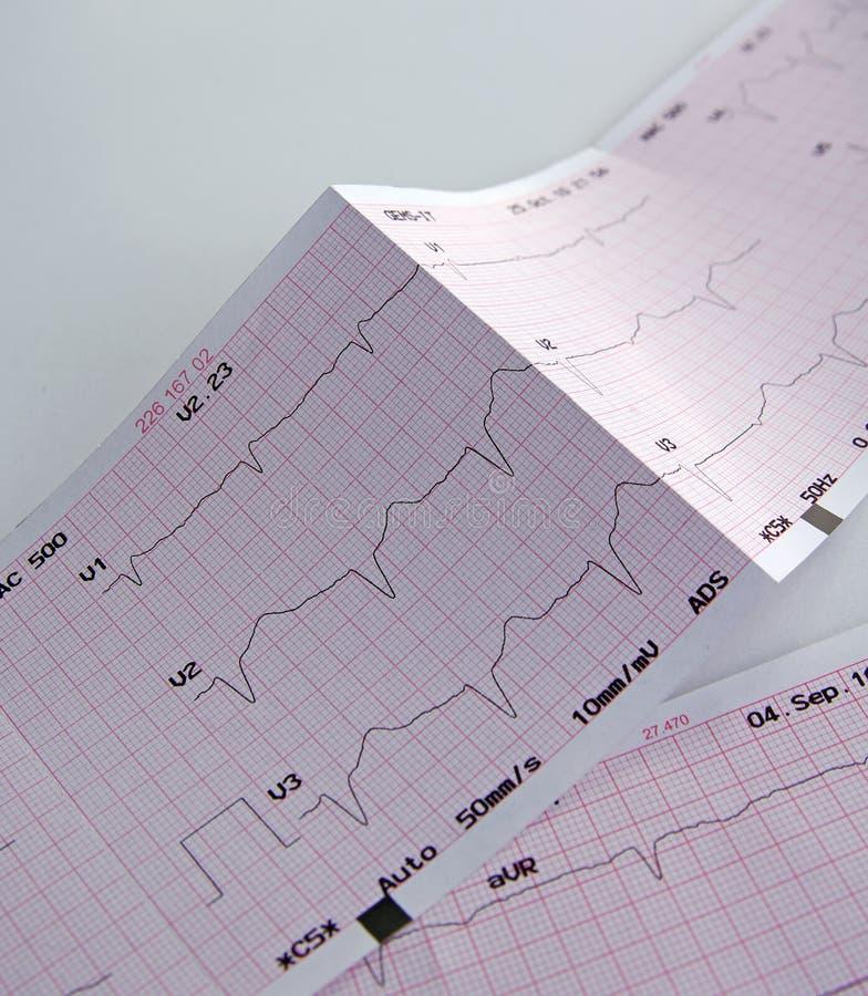 cardiogram стоковая фотография