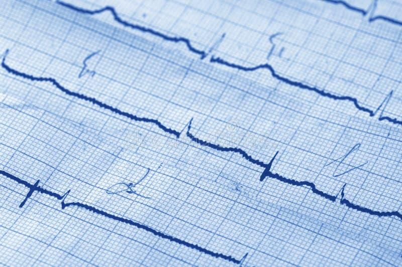Download Cardiogram stock image. Image of medicine, diagnostic - 17902103