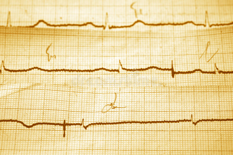 Download Cardiogram stock photo. Image of medicine, close, pattern - 18017318