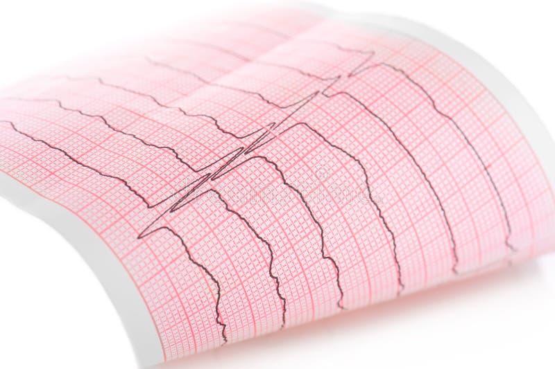 Cardiogram arkivfoton