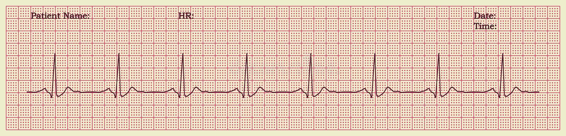 Download Cardiogram stock vector. Image of beat, arrhythmia, heartbeat - 25633781