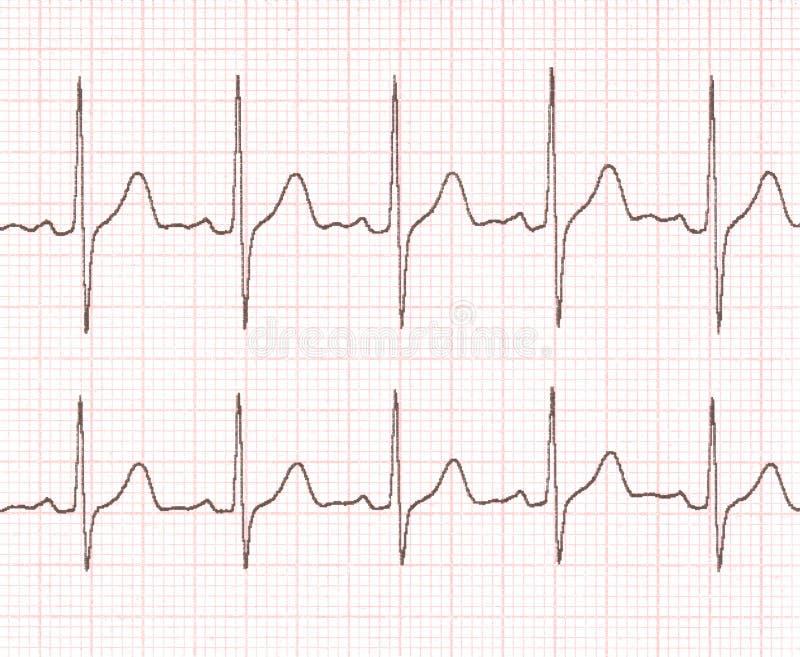 Cardiogram royalty-vrije stock fotografie