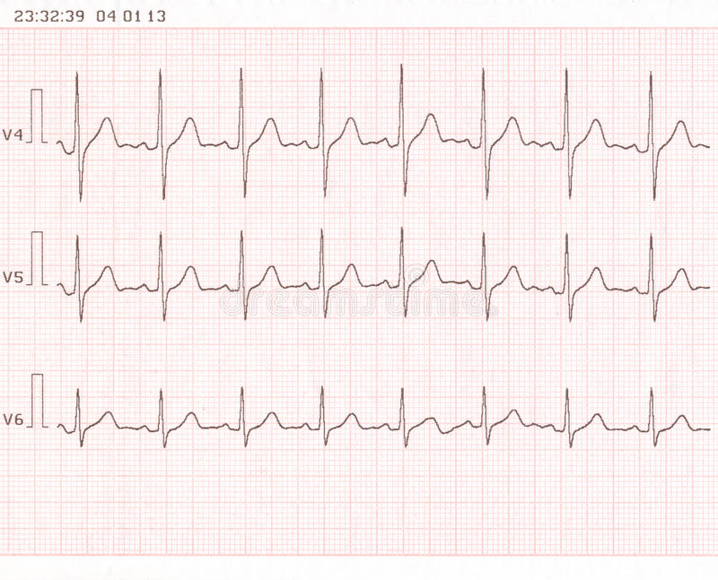 Download Cardiogram stock photo. Image of medical, cardiogram - 29804118