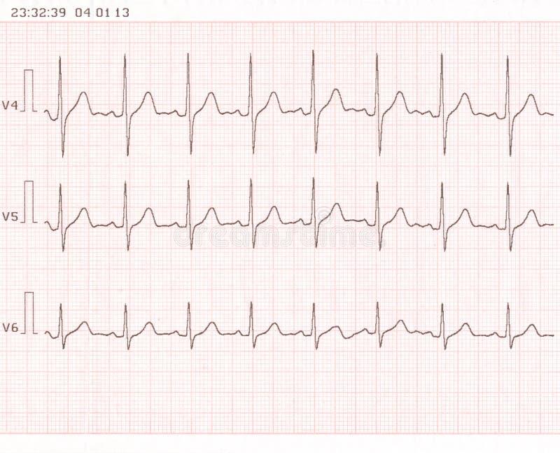 Cardiogram lizenzfreie stockfotos