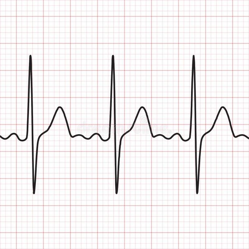 cardiogram electrocardiograma Representación gráfica del trabajo del corazón Salud y medicina stock de ilustración