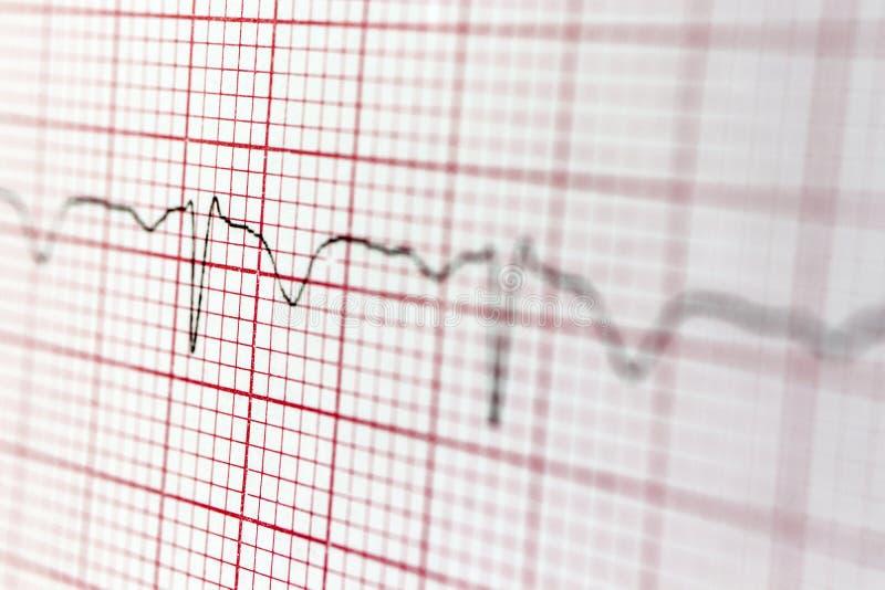 cardiogram royalty-vrije stock afbeelding