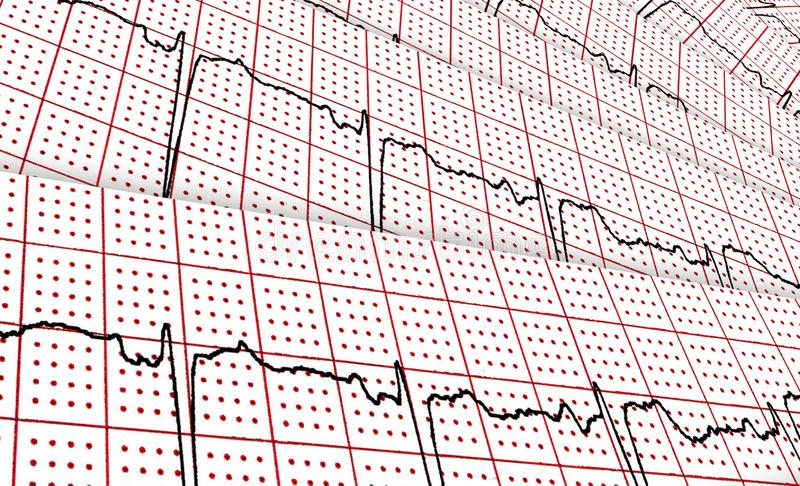 Cardiogram. A few research result by CU royalty free illustration