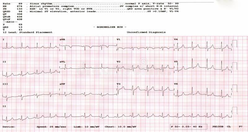 cardiogram forme d'onde d'un essai d'électrocardiogramme limite d'apparence d'électrocardiogramme photographie stock