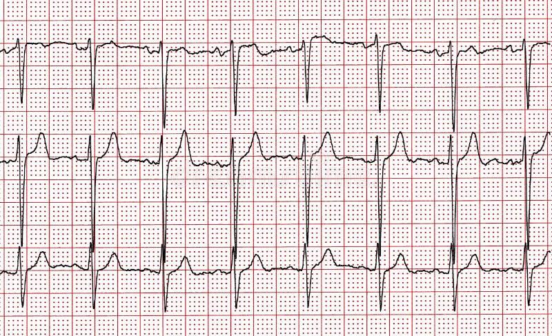 cardiogram Fragment des Forschungsresultats durch CU lizenzfreie stockfotografie