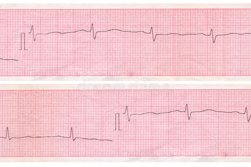 Download Cardiogram. Heart Analysis Scheme Stock Image - Image: 25548191