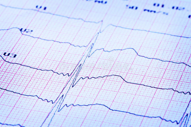 Download Cardiogram Of Heart On Paper. Stock Image - Image: 19298495