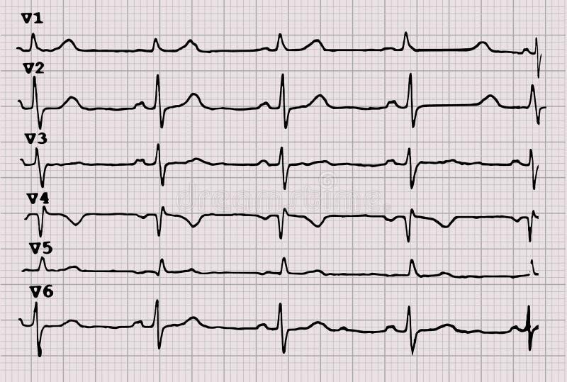 cardiogram heartbeat O gr?fico no papel de gr?fico ilustração do vetor