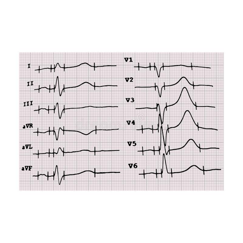 cardiogram heartbeat O gr?fico no papel de gr?fico Ilustra??o do vetor no fundo isolado ilustração stock