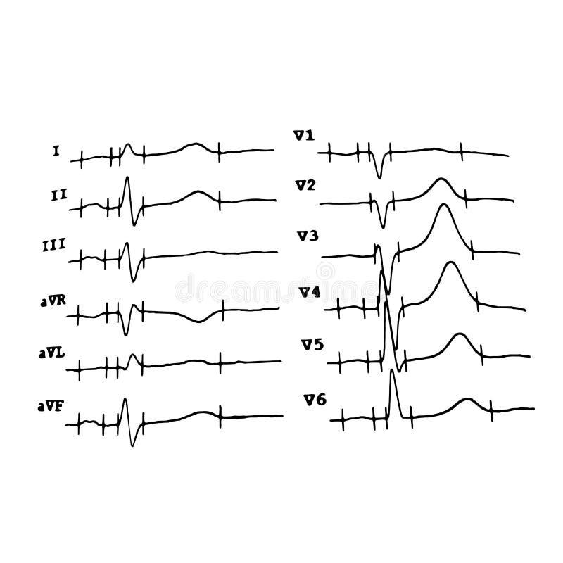 cardiogram heartbeat programa??o Ilustra??o do vetor no fundo isolado ilustração stock