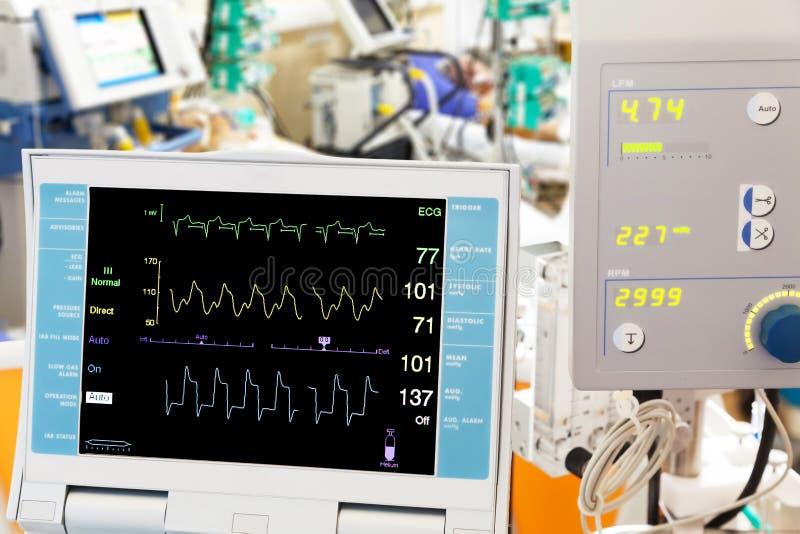 Cardiogram met ECMO royalty-vrije stock fotografie