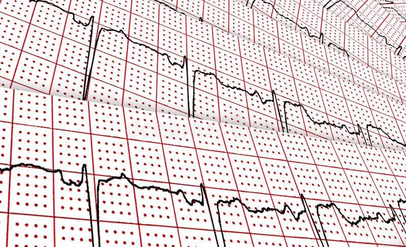 cardiogram Några forskningsresultat vid CU royaltyfri illustrationer