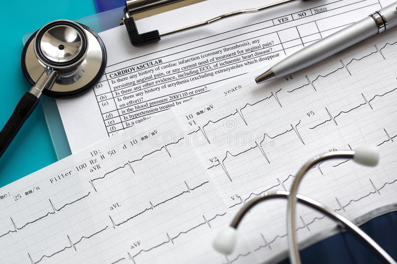 Cardiogram and stethoscope stock photography