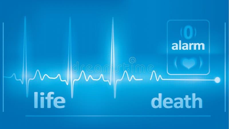 Cardiograma de los golpes de corazón, y asistolia en el monitor. ilustración del vector