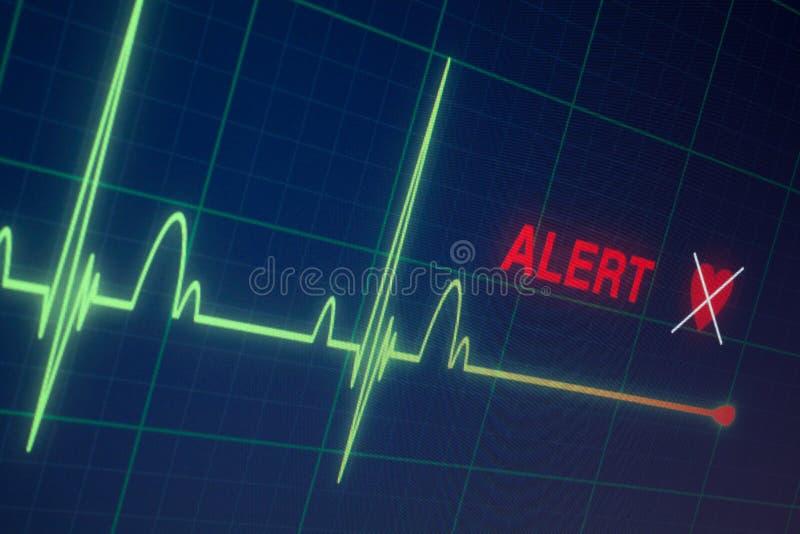 Cardiograma dos batimentos cardíacos no monitor fotos de stock royalty free