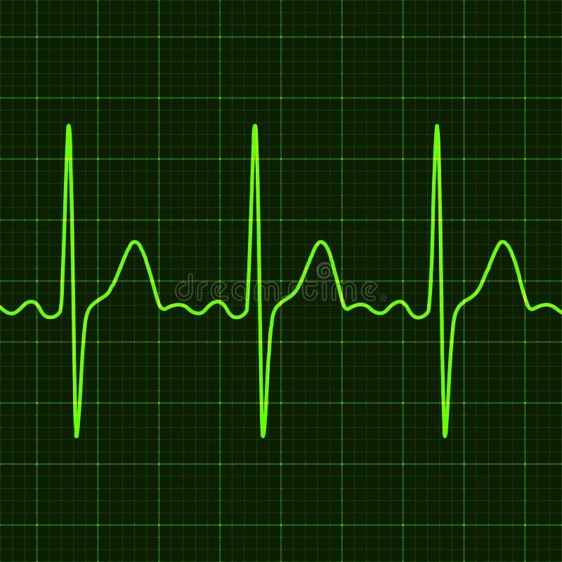 Cardiograma no monitor digital do dispositivo electrocardiogram Representação gráfica do trabalho do coração Saúde e medicina ilustração do vetor