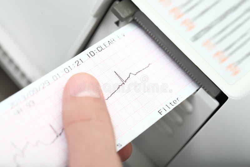 Cardiogramma e cardiografo immagine stock libera da diritti