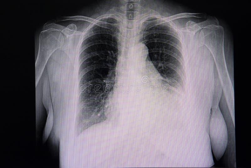 cardiomegália e efusão pleural esquerda imagens de stock