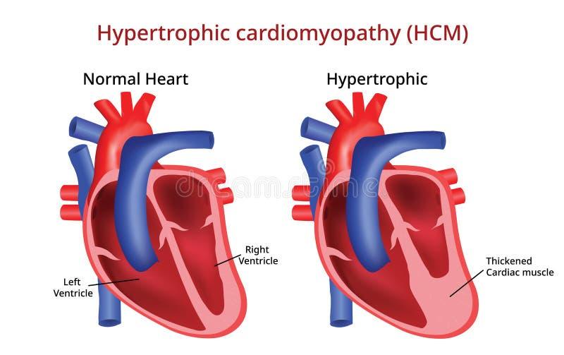 Cardiomiopatia Hypertrophic, doença cardíaca, imagem do vetor ilustração do vetor