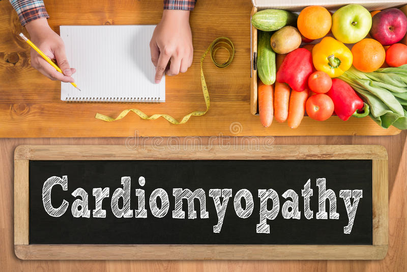 Cardiomyopathy arkivbild