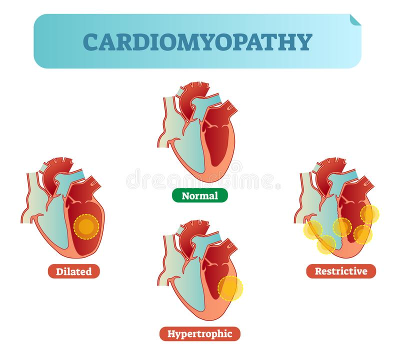 Cardiomyopathy medical disorders cross section diagram, vector illustration examples. Cardiomyopathy - human heart medical disorders cross section diagram stock illustration