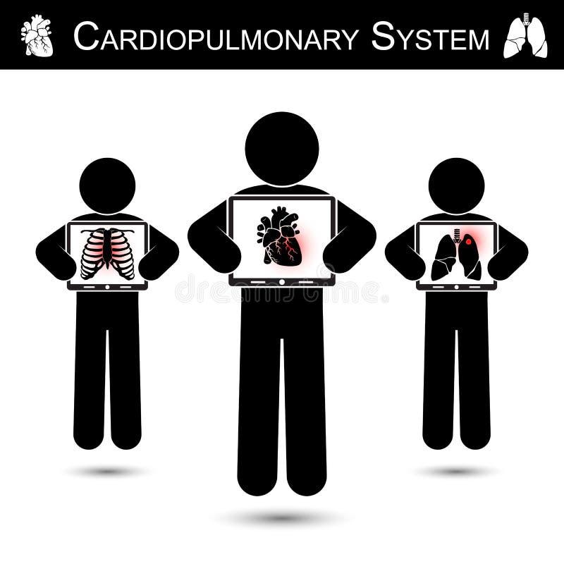 Cardiopulmonary system Mänsklig hållbildskärmskärm och showkopiering av skelettet (bröstkorgskadan), hjärta (Myocardial infarkt royaltyfri illustrationer