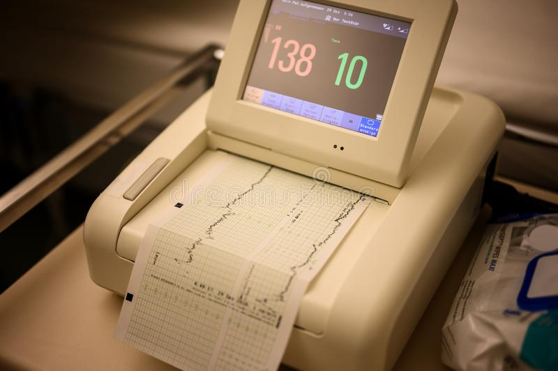 Cardiotocography machine of hospital with monitor and chart royalty free stock photo