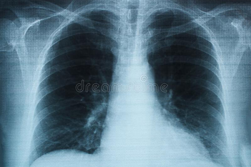 Cardiovascular, pleural, tuberculose, hospital, vida, bronquite, clínica, bronchoscopy, fumador, problema, respiratório, crônico, ilustração do vetor
