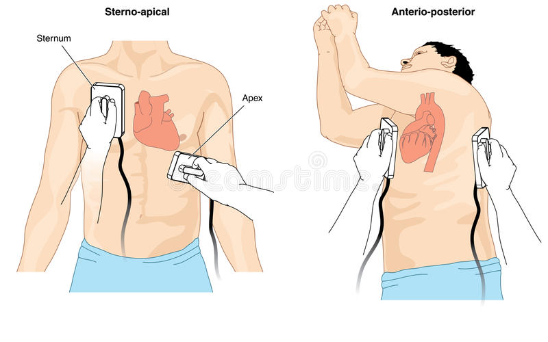 Cardioversión del Defibrillator libre illustration