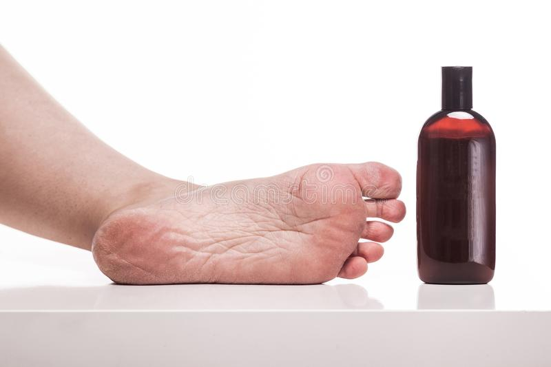 Care for dry skin on the well-groomed feet and heels with creams. For the skin and feet stock images
