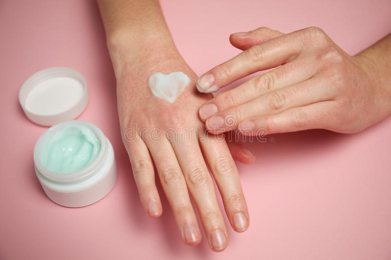 Care for irritated skin. Lotion and hand cream. Redness, allergies and irritation. Moisturizing hands in the winter.  stock image