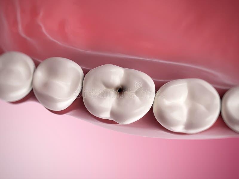 Carie dentaire illustration libre de droits