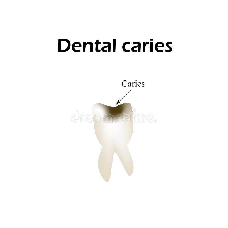 Carie dentaire profonde Illustration de vecteur sur le fond d'isolement illustration stock