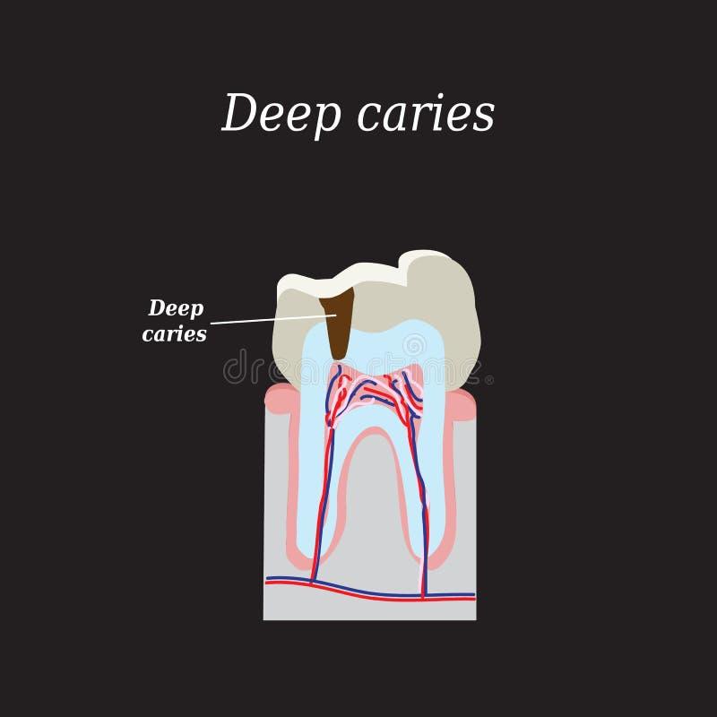 Carie dentaire profonde Illustration de vecteur sur un noir illustration libre de droits