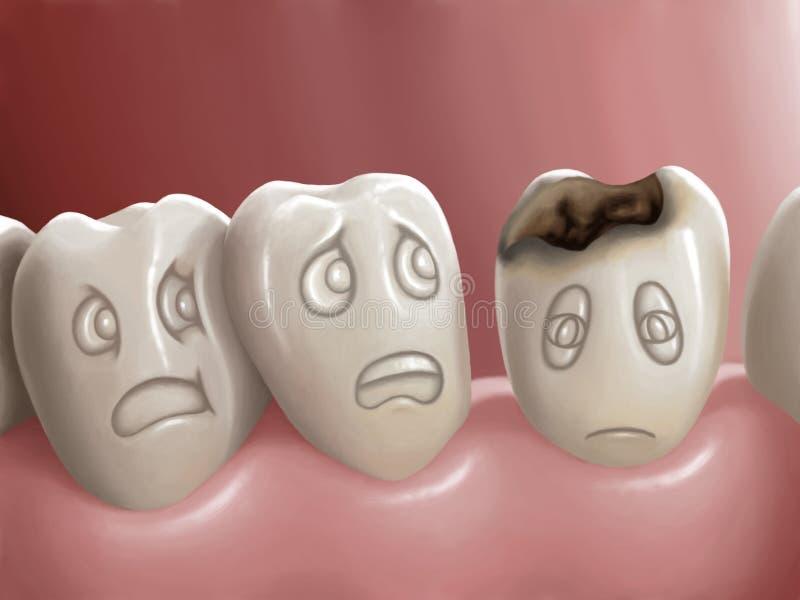 Carie dentale illustrazione vettoriale