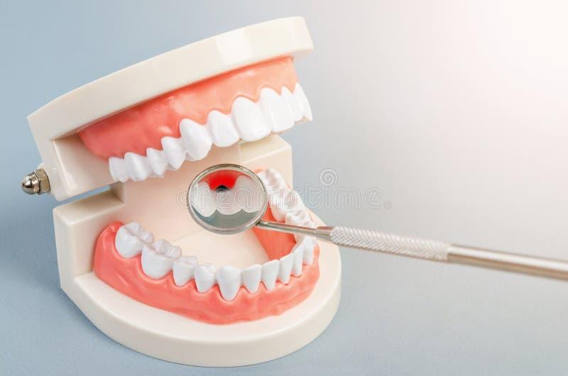 Carie dentale del dente sulla protesi dentaria con attrezzatura dentaria immagine stock