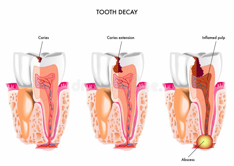 Carie dentaria royalty illustrazione gratis