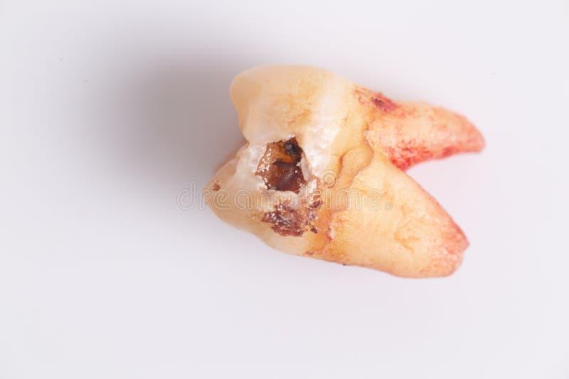 Carie sur les dents sur le fond blanc images stock